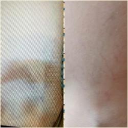 Serenity Derma-Technology (Laser Treatments Ladies & Gents)